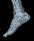 Ankle joint with foot and tibia stock photos