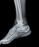 Ankle joint with foot and tibia Royalty Free Stock Photos