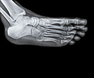 Ankle joint with foot and tibia stock image