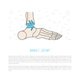 Ankle joint replacement. Treatment and prosthetics to the ankle and his replacement, vector illustration isolated on white background Royalty Free Stock Photos