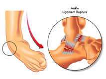 Ankle ligament rupture Royalty Free Stock Photography