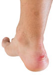 Ankle of male man with scratch Stock Image