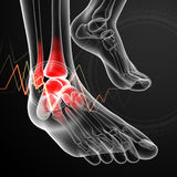 Ankle pain Royalty Free Stock Image
