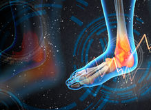 Ankle pain - detail Royalty Free Stock Photography