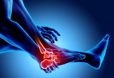 Ankle painful - skeleton x-ray. Royalty Free Stock Images