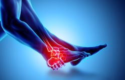 Ankle painful - skeleton x-ray. Ankle painful - skeleton x-ray, 3D Illustration medical concept Stock Photos