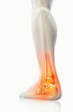 Ankle painful - skeleton x-ray. Ankle painful - skeleton x-ray, 3D Illustration medical concept Royalty Free Stock Photography