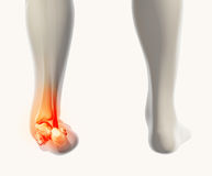 Ankle painful - skeleton x-ray. Ankle painful - skeleton x-ray, 3D Illustration medical concept Stock Image