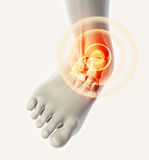 Ankle painful - skeleton x-ray. Royalty Free Stock Photography