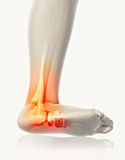 Ankle painful - skeleton x-ray. Stock Photos
