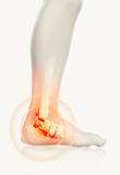 Ankle painful - skeleton x-ray. Royalty Free Stock Photos