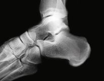Ankle x-ray. Close-up of a ankle x-ray royalty free stock image