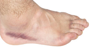 Ankle sprain. Swollen food caused by ankle sprain isolated on white background royalty free stock photography