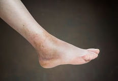 Ankle sprain. Isolated on brown background royalty free stock images