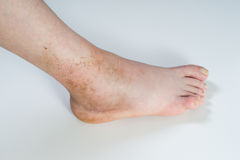 Ankle sprain Stock Images