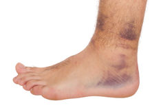 Ankle Sprain Stock Photography