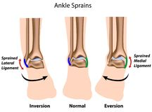 Ankle sprains. Types of ankle sprains with indicated ligaments, eps8 Stock Image