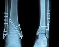 Ankle X ray with Osteosynthesis Royalty Free Stock Photos