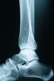 Ankle xray Stock Photography