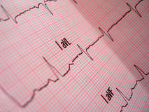 Análise do coração Fotografia de Stock