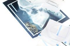 Anneaux en caoutchouc et fil orthodontiques sur le rayon X Photo libre de droits