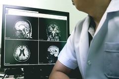 ANNONS med ändring för vit fråga för CVD arkivbilder