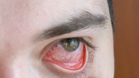 Annoyed red blood eye of young male. Annoyed red blood eye of male affected by conjunctivitis or after flu, cold or allergy. Concept of health, disease and stock video