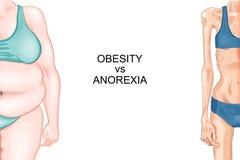 Anorexia i otyłość Royalty Ilustracja