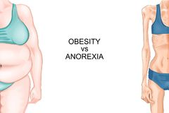 Anorexia and obesity. Vector illustration of female figure with anorexia and obesity Royalty Free Stock Image