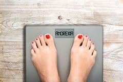 Anorexia tekst na ciężar skala, zaburzenia odżywania jako poważny choroby psychicznej pojęcie Zdjęcie Royalty Free