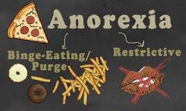 Anorexie met Classificatie wordt geïllustreerd die: Twee Types royalty-vrije illustratie