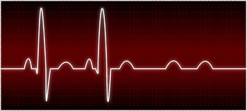 Anormales EKG (Handelsblock) Stockfotografie
