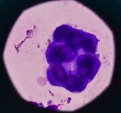 Anormalnej złej komórki próbki opłucnowy fluid zdjęcia stock