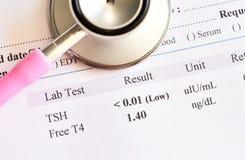 Anormalny tarczycowego hormonu wynik testu fotografia royalty free