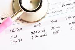 Anormalny tarczycowego hormonu wynik testu obraz royalty free