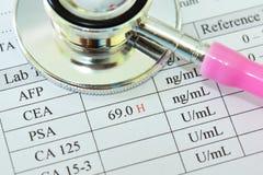 Anormalny wysoki PSA wynik testu obrazy stock
