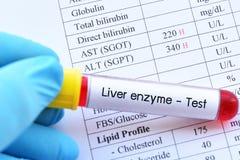 Anormalny wysokiej wątróbki enzymu wynik testu zdjęcie royalty free