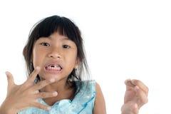 6 anos de criança idosa perderam o dente de bebê Fotografia de Stock