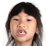 6 anos de criança idosa perderam o dente de bebê Foto de Stock Royalty Free
