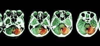 Anschlag (CT-Scan des Gehirns und Basis des Schädels und des Anschlags) Lizenzfreie Stockfotos