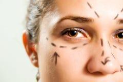 ansikts- plastikkirurgi Arkivfoton