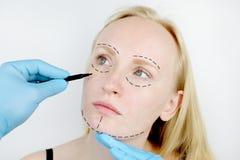 Ansikts- plastikkirurgi eller facelift, facelift, framsidakorrigering En plast- kirurg undersöker en patient för plastikkirurgi arkivfoto