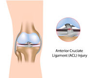Anterior Cruciate Ligament injury. Torn Anterior Cruciate Ligament, a common sport injury Stock Photography