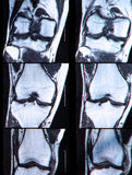 Anterior cruciate ligament tear seen on knee MRI. Anterior cruciate ligament tear seen on MRI royalty free stock photo