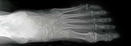 Anterior X-ray of Human Foot Royalty Free Stock Photos