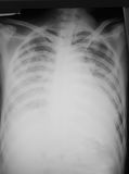 Anteroposteriore (AP) Ansicht des Kastenfilmes eines 32-Jahr-alten Mannes, der demonstrierten Herzerweiterung und des verbreiteten Stockfoto