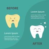 Antes após o ícone de sorriso saudável do dente de Infographic Estrela de Sining Dentes doentes maus amarelos de grito com cáries Foto de Stock Royalty Free