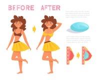 Antes e depois Cirurgia do peito Vetor dos implantes cartoon Arte isolada no fundo branco ilustração royalty free