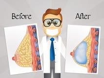 Antes e depois da cirurgia do peito ilustração stock