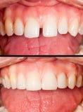 Antes y después Foto de archivo